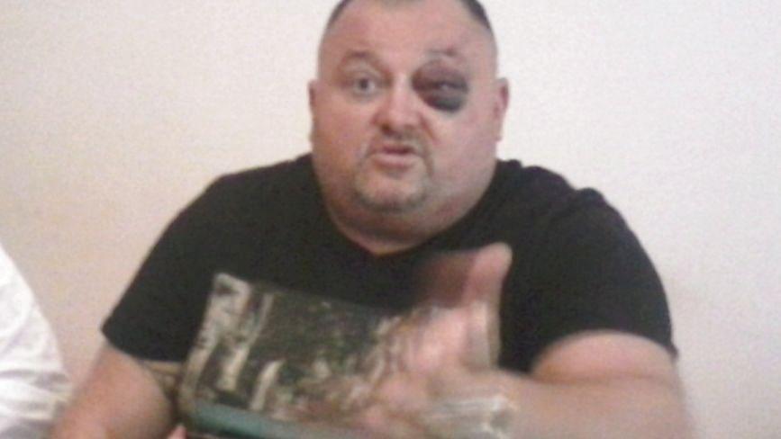"""Борис Пасіченко, він же Боря Лексус, після нападу на нього каже: """"У міліціонерів пелена на очах"""""""