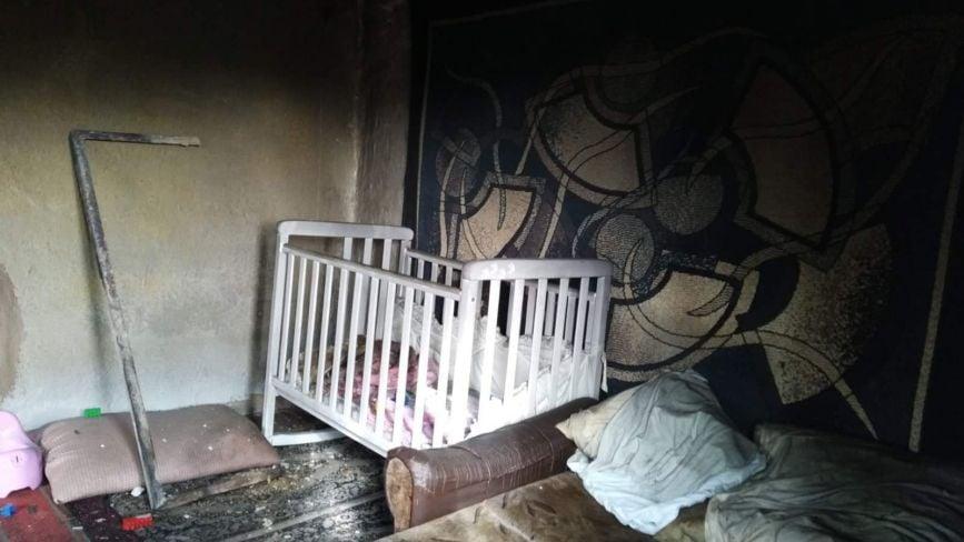 Смертельна пожежа біля Вінниці: допоможіть вижити Улянці, яка в реанімації