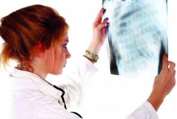 Туберкульоз молодшає і призводить до смерті. Ви впевненні у власному здоров'ї?