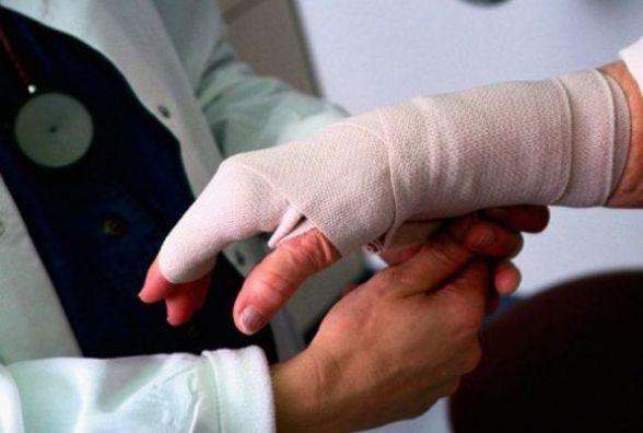 100-тонним пресом по руці… Через два тижні на роботі - вінничанин втратив частину пальців