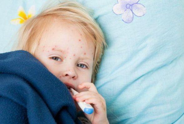 На кір в Вінниці вже захворіло 19 дітей. Що потрібно знати про хворобу