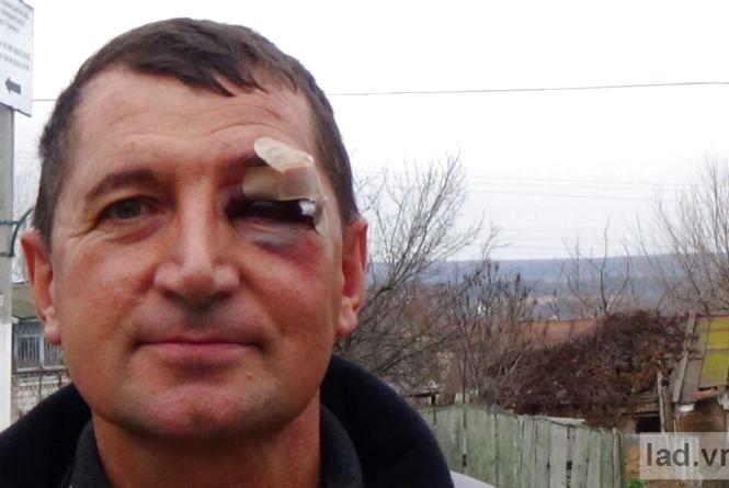 """Активісту з Ладижина дали по голові кастетом за """"курочку"""""""