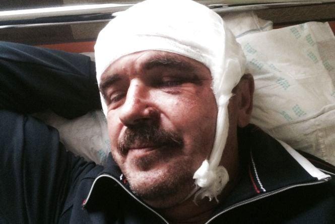У Хмільнику жорстоко побили керівника Самооборони. Бандити приїхали з Вінниці на чужих номерах