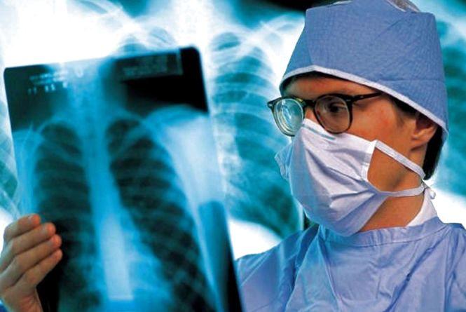 На Соборній можна буде безкоштовно перевіритися на туберкульоз