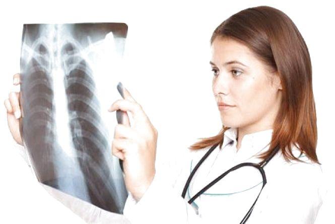 На Соборній три дні безкоштовно перевірятимуть на туберкульоз
