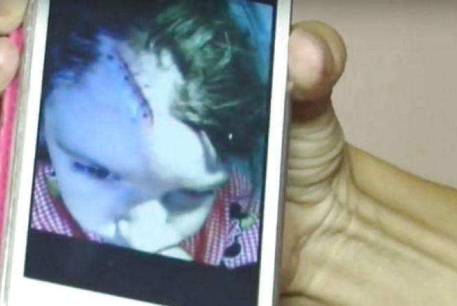 Бiля супермaркету «AТБ» на голову дитині впав 150-ти кілограмовий банер