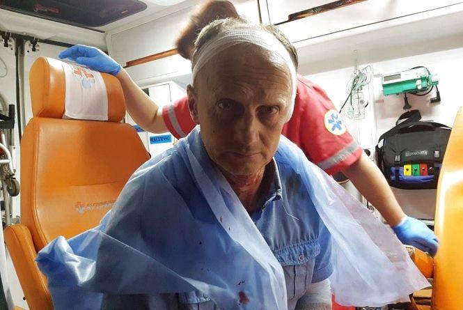 Битою розбили голову Володимиру Воловодюку, засновнику медіа-центру
