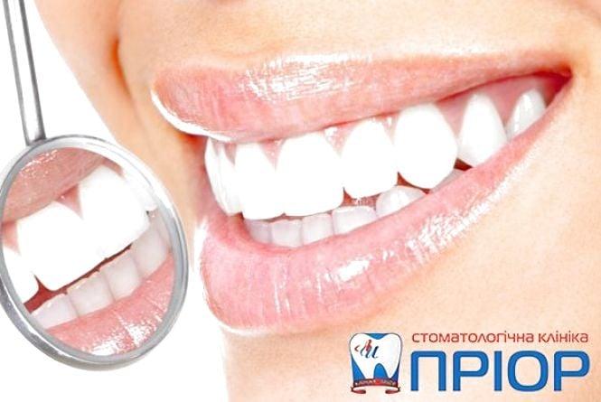 Що Ви знаєте про зуби? (ТЕСТ)
