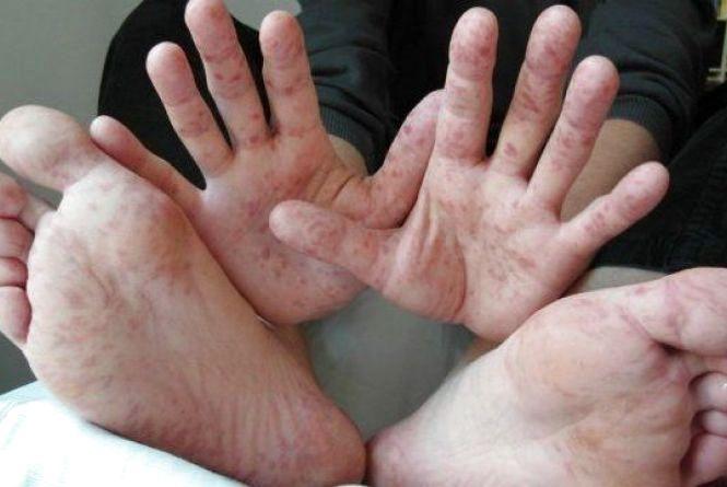 Лікарі про кір: у Вінниці він під контролем, а в області зростає