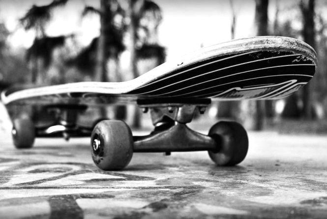 У Вінниці «Хонда» збила 11-річного хлопчика на скейтборді. Дитина у лікарні