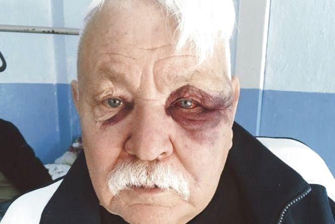 У Жмеринці водій автобусу побив пенсіонера-американця? Версії сторін