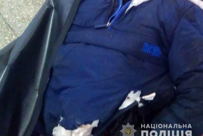 У Вінниці під потяг стрибнув молодик. Поліція просить упізнати загиблого (ФОТО)